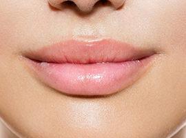 Juvedern Ultra Lips