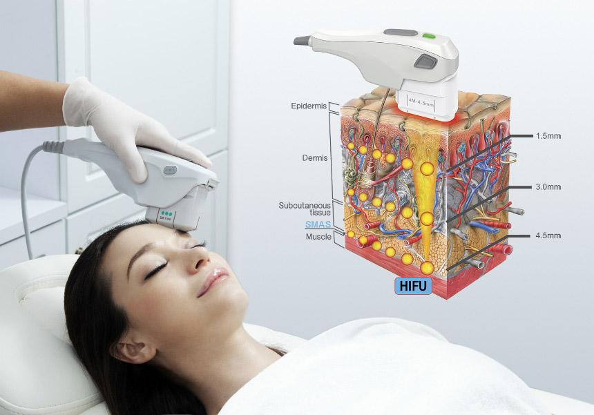 Hifu process on skin